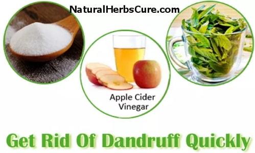 home remedies dandruff