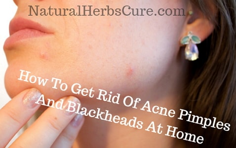 how to get rid acne pimples blackheads home naturally