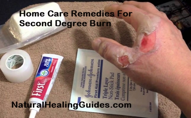 home care remedies 2nd degree burns