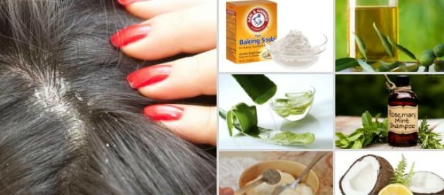 home remedies dandruff