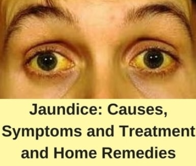 home remedies get rid jaundice yellow eyes