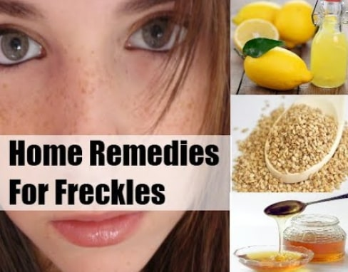 how to remove freckles face nose permanently